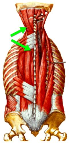 Gross I: Intrinsic Back Muscles flashcards | Quizlet