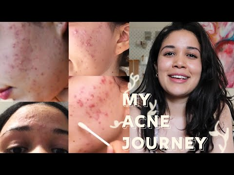 AcnEase all natural acne treatment for adult and teen acne