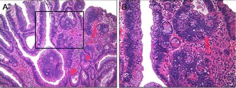 The significance of ectopic crypt formation in the
