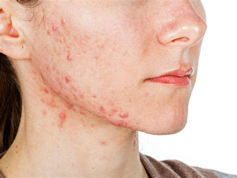 Cystic acne: Causes, symptoms, and treatments